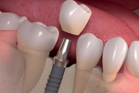 Cấy ghép răng Implant Sure